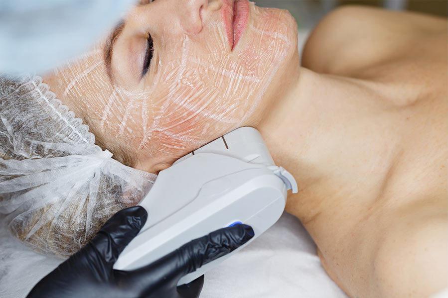 HIFU Face Treatment